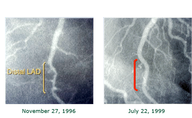 Reversal-of-coronary-disease